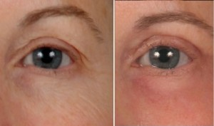 Blepharoplasty | Atlanta | Before and After Photos | Dr. Marcia Byrd