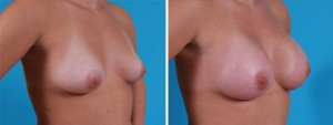 Breast Augmentation | Atlanta | Before and After Photos | Dr. Marcia Byrd