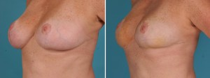 Breast Reduction | Atlanta | Before and After Photos | Dr. Marcia Byrd