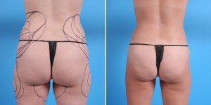 Brazilian Butt Lift | Atlanta | Before and After Photos | Dr. Marcia Byrd