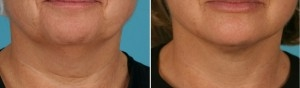 Mini Facelift | Atlanta | Patient 1 | Before and After Photos | Front View | Dr. Marcia Byrd