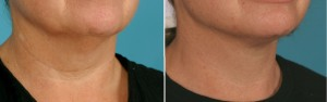 Facial Laser Lift | Atlanta | Patient 1 | Before and After Photos | Oblique View | Dr. Marcia Byrd