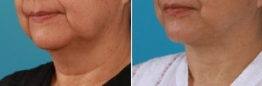 Facial Laser Lift | Atlanta | Patient 1 | Before and After Photos | Front View | Dr. Marcia ByrdFacial Laser Lift | Atlanta | Patient 1 | Before and After Photos | Oblique View | Dr. Marcia Byrd