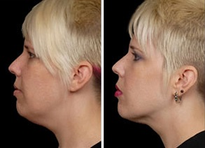 Facial Laser Lift | Atlanta | Patient 8 | Before and After Photos | Side View | Dr. Marcia Byrd