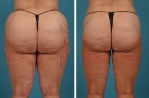 Water Assisted Liposuction | Atlanta | Lipedema| Before and After Photos | Dr. Marcia Byrd