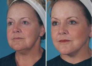 Mini Facelift | Atlanta | Patient 1 | Before and After Photos | Oblique View | Dr. Marcia Byrd
