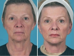 Mini Facelift | Atlanta | Patient 3 | Before and After Photos | Front View | Dr. Marcia Byrd