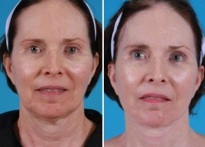 Mini Facelift | Atlanta | Patient 4 | Before and After Photos | Front View | Dr. Marcia Byrd