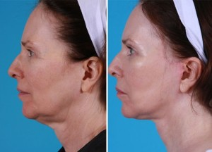 Mini Facelift | Atlanta | Patient 4 | Before and After Photos | Side View | Dr. Marcia Byrd