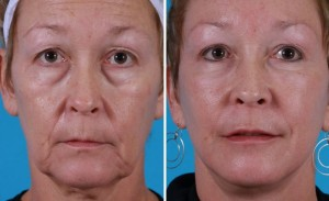 Mini Facelift | Atlanta | Patient 7 | Before and After Photos | Front View | Dr. Marcia Byrd