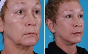Mini Facelift | Atlanta | Patient 7 | Before and After Photos | Oblique View | Dr. Marcia Byrd