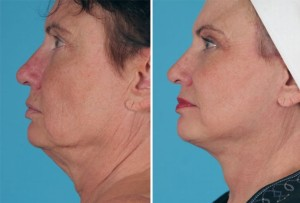 Mini Facelift | Atlanta | Patient 8 | Before and After Photos | Side View | Dr. Marcia Byrd
