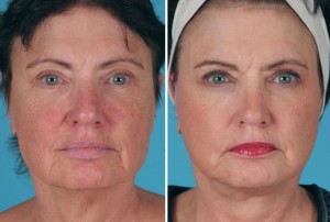 Mini Facelift | Atlanta | Patient 8 | Before and After Photos | Front View | Dr. Marcia Byrd