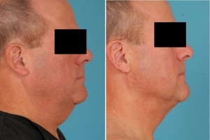 Neck Liposuction | Atlanta | Patient 1 | Before and After Photos | Side View | Dr. Marcia Byrd