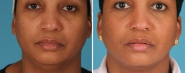 Neck Liposuction | Atlanta | Patient 2 | Before and After Photos | Front View | Dr. Marcia Byrd