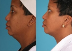 Neck Liposuction | Atlanta | Patient 2 | Before and After Photos | Side View | Dr. Marcia Byrd