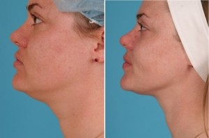 Neck Liposuction | Atlanta | Patient 3 | Before and After Pictures | Side View | Dr. Marcia Byrd