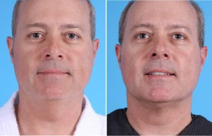 Neck Liposuction | Atlanta | Patient 4 | Before ans After Photos | Front View | Dr. Marcia Byrd