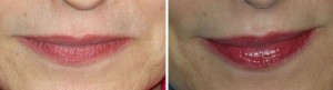 Permanent Makeup | Atlanta | Patient 6 | Before and After Photos | Dr. Marcia Byrd
