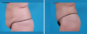 Tummy Tuck | Atlanta | Patient 3 | Before and After Photos | Side View | Dr. Marcia Byrd