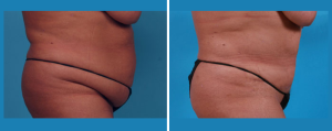 Tummy Tuck | Atlanta | Patient 5 | Before and After Photos | Side View | Dr. Marcia Byrd