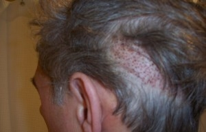 NeoGraft | Atlanta | Before and After Photos | Dr. Marcia Byrd