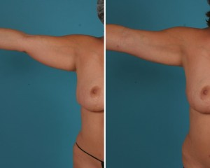 Arm Liposuction | Atlanta | Before and After Photos | Dr. Marcia Byrd