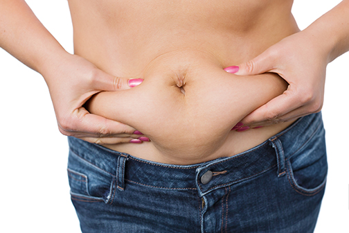 photo of a woman with a fat belly | Tummy Tuck