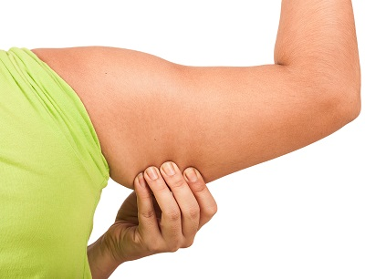 Arm Lift or Brachioplasty | Byrd Aesthetic & Anti-Aging Center