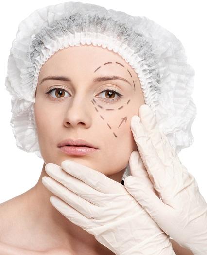 Eyelift | Dr. Byrd | Blepharoplasty