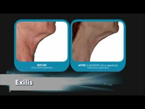 Dr. Marcia Byrd | Atlanta Exilis Skin Tightening