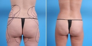 Liposuction | Atlanta | Before and After Photos | Dr. Marcia Byrd