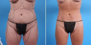 Abdomen Liposuction | Atlanta | Before and After Photos | Dr. Marcia Byrd