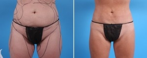 Liposuction | Atlanta | Patient 1 | Before and After Photos | Front View |Dr. Marcia Byrd