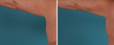 Arm Lift | Atlanta| Before and After Photos | Dr. Marcia Byrd