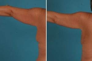 Arm liposuction, Arm Lift, Brachioplasty, Before & After