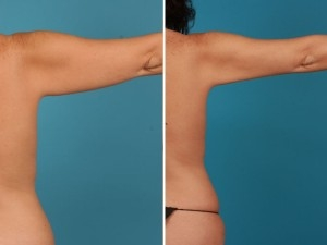 Arm Lift | Atlanta | Before and After Photos | Dr. Marcia Byrd