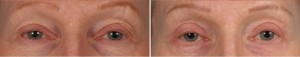 Blepharoplasty | Atlanta | Patient 8 | Before and After Photos | Front View | Dr. Marcia Byrd