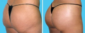 Brazilian Butt Lift | Atlanta | Patient 10 | Before and After Photos | Oblique View | Dr. Marcia Byrd