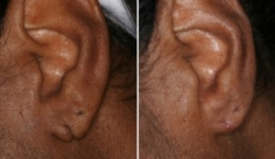 Earlobe Repair | Atlanta | Before and After Photos | Dr. Marcia Byrd