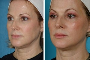 Erbium Laser | Atlanta | Before and After Photos | Dr. Marcia Byrd