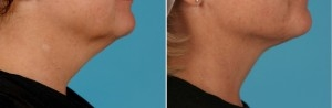Facial Laser Lift | Atlanta | Patient 1 | Before and After Photos | Side View | Dr. Marcia Byrd