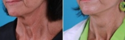 Facial Laser Lift | Atlanta | Patient 2 | Before and After Photos | Oblique View | Dr. Marcia Byrd