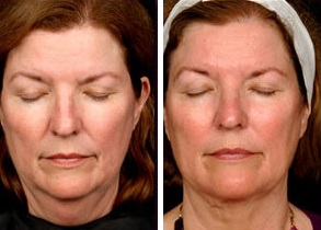 Facial Laser Lift | Atlanta | Patient 9 | Before and After Photos | Front View | Dr. Marcia Byrd