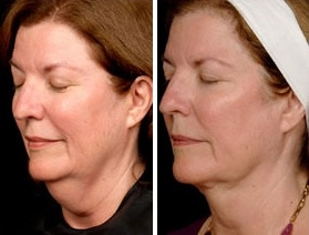 Facial Laser Lift | Atlanta | Patient 9 | Before and After Photos | Oblique View | Dr. Marcia Byrd