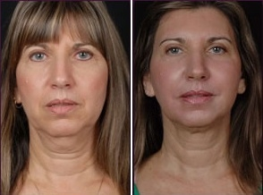 Facial Laser Lift | Atlanta | Patient 4 | Before and After Photos | Front View | Dr. Marcia Byrd|