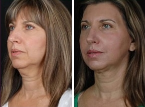 Facial Laser Lift | Atlanta | Patient 4 | Before and After Photos | Oblique View | Dr. Marcia Byrd