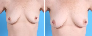 Fat Transfer Breasts | Atlanta | Before and After Photos | Dr. Marcia Byrd