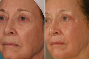 Fraxel Laser | Atlanta | Before and After Photos | Dr. Marcia Byrd