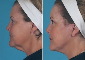 Mini Facelift | Atlanta | Patient 1 | Before and After Photos | Side View | Dr. Marcia Byrd